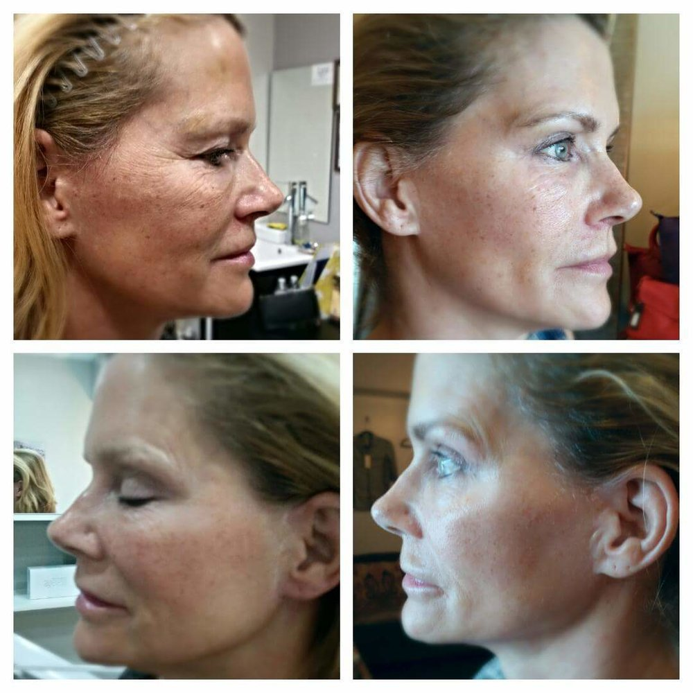 Derma Planing and Micro Current Facial