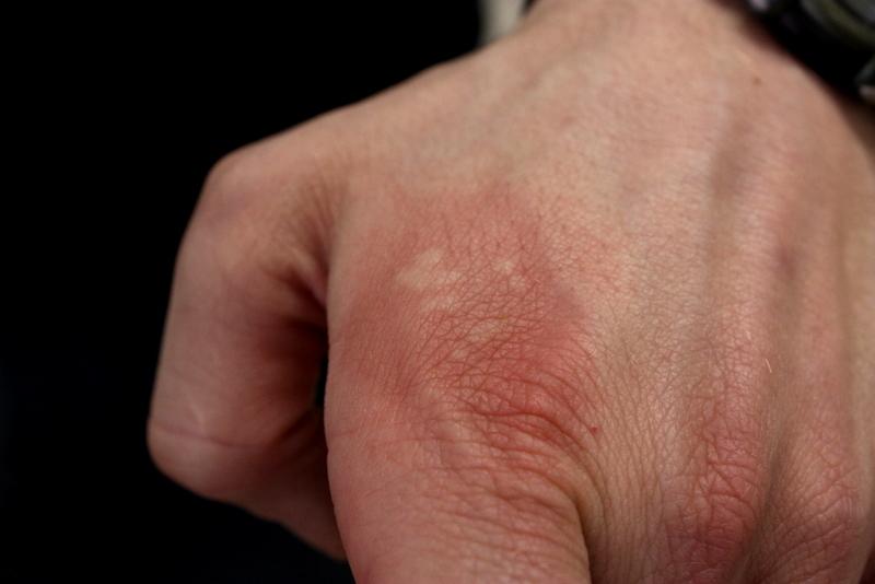 Nettle sting