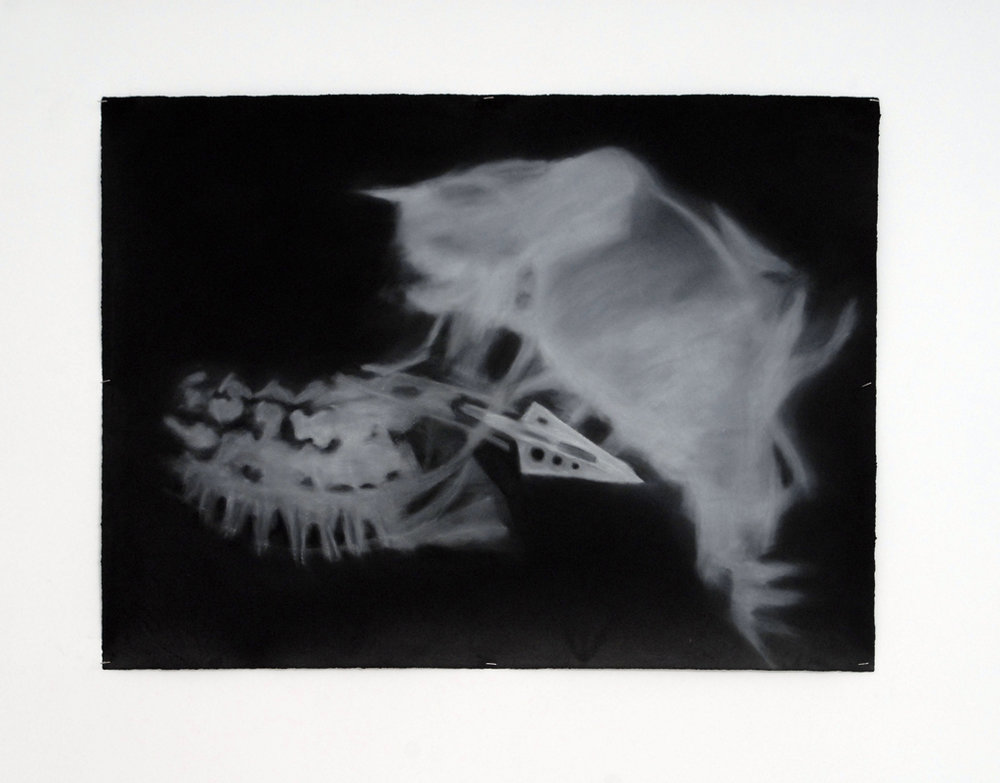 David Colossi,  ANNALS OF ROENTGENOLOGY · VOL · XXII,  Catherine Bastide gallery, Brussels, 2007, exhibition view