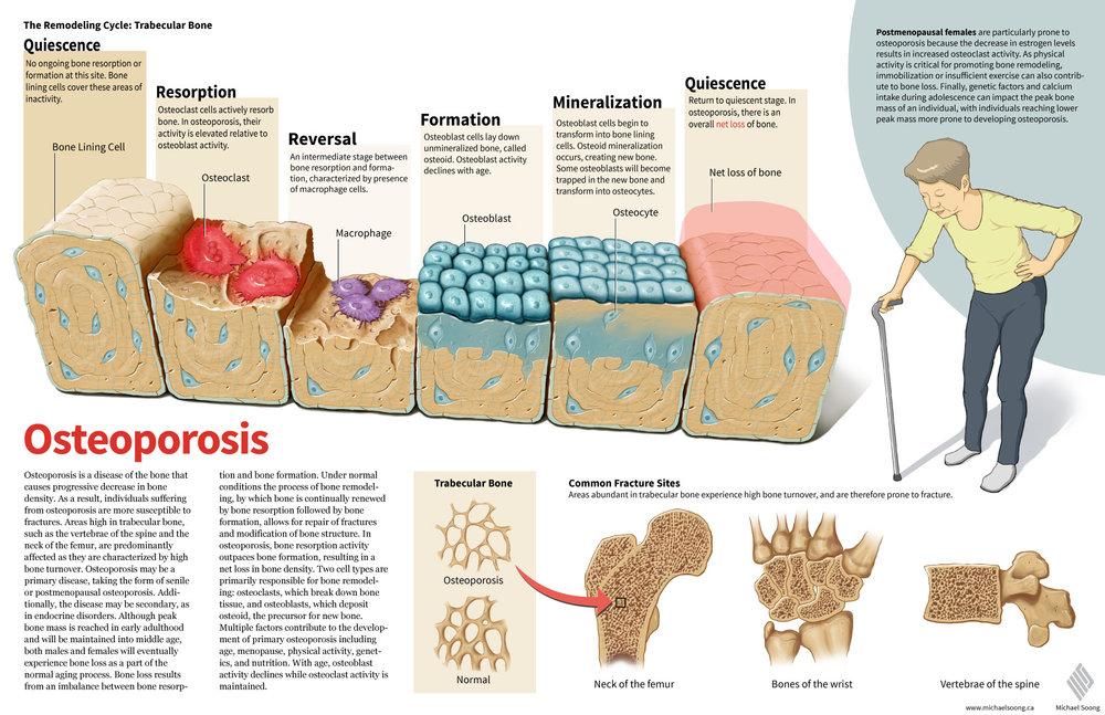 MichaelSoong_osteoporosis.jpg