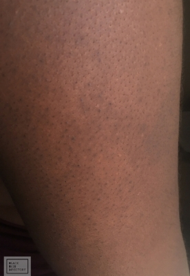 Keratosis Pilaris on back of arms.