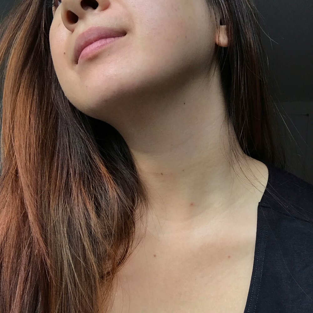 After 4th use | I raised my head to better show you my chin, where the scarring appeared a lot less visible. (Photo unedited; taken facing natural daylight.)