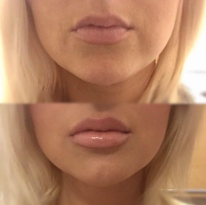 West Coast Lips