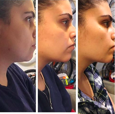 "before and after two sessions of kybella to reduce ""double chin"" fat"