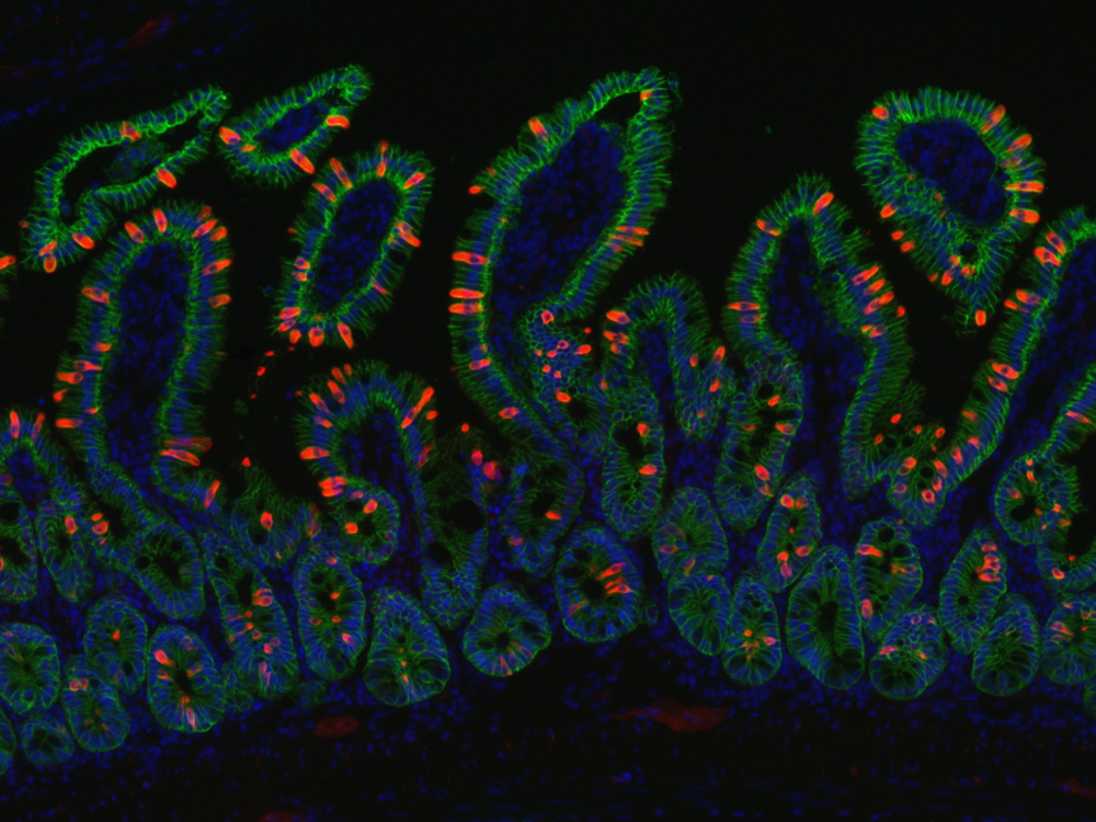 DCLK1 (red) marks epithelial (EPCAM+ in green) tuft cells in the small intestine during helminth infection. Nuclei in blue.