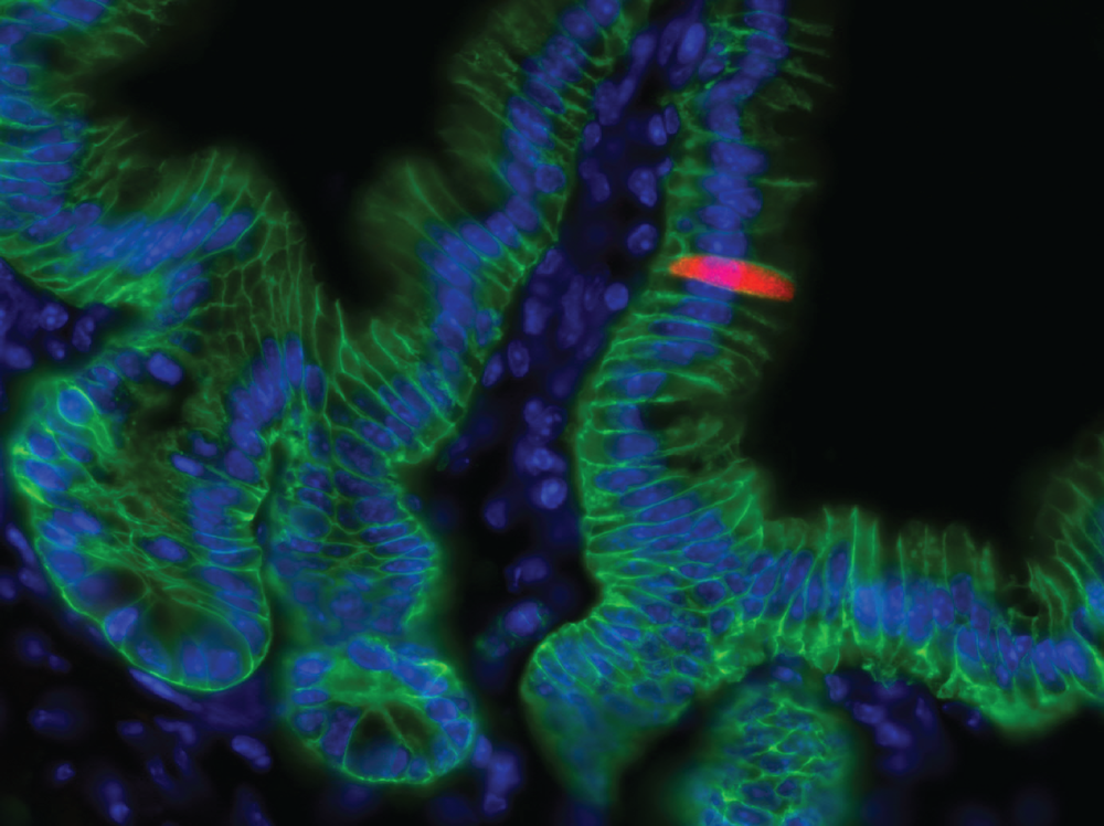 IL-25 (red) marks epithelial (EPCAM+ green) tuft cells in the small intestine. Nuclei in blue.