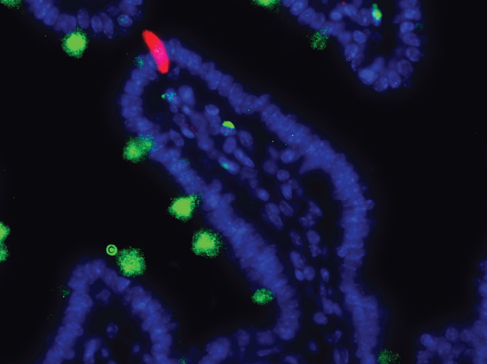 MUC2+ goblet cells (green) and IL-25+ tuft cells (red) in the small intestine. Nuclei in blue.