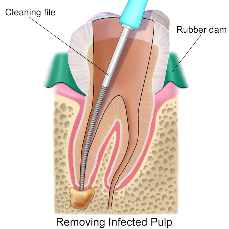 root-canal-transparent.png