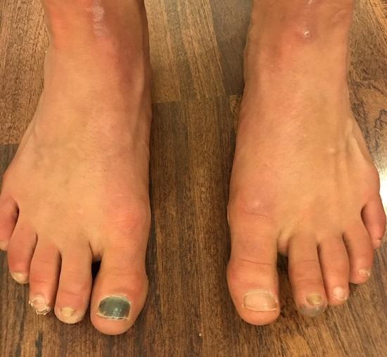The feet...