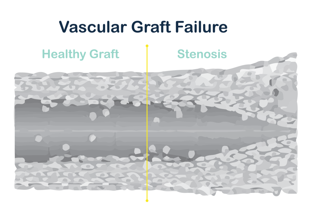 graft failure diagram v2-01.png