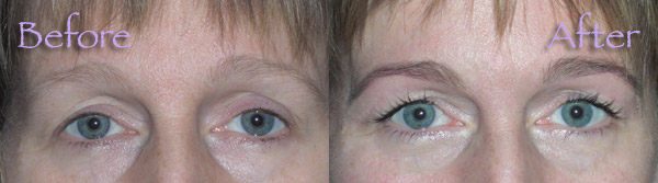 26b28249117 You can enjoy having long, beautiful and thicker lashes 24 hours a day and  for weeks at a time without hassle, inconvenience or the need for mascara.