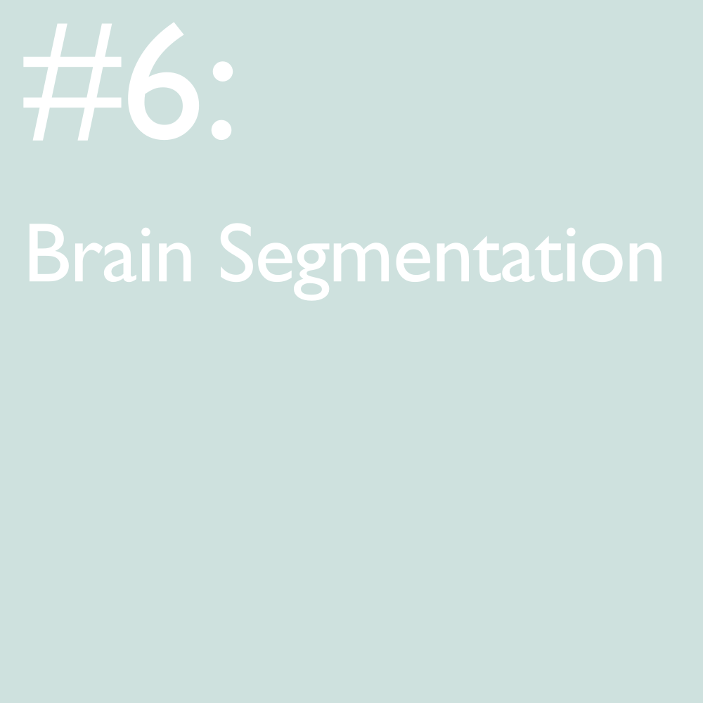 """Research into brain neuroimaging using MRI has exploded over the past few decades given new advances in MR technologies. Many neuroimaging tools rely on automated algorithms to segment the brain into different tissue types for subsequent processing. This is typically done using """"priors"""", an existing set of probability maps that inform the segmentation algorithm what probabilities a given voxel has of belonging to a certain tissue type. While this is typically quite successful in normal brains, any sort of anatomical perturbation due to stroke, traumatic brain injury or tumor renders segmentations ineffective and inaccurate. Difficulties are compounded when scans are contaminated with subject movement and have reduced tissue contrast which is common when scanning children. The only solution is to manually segment these areas, a task which is very time-consuming, subjective and requires advanced anatomical knowledge."""