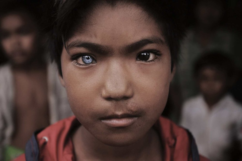 Blue Eyed, Brown Eyed Boy. Cambodia-Thai border. 2008