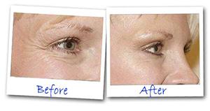Before-After-Eye.jpg