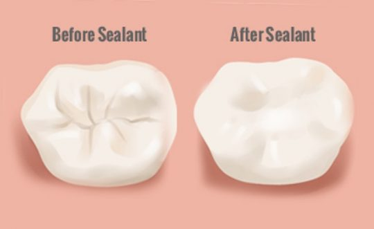 sealants.jpeg
