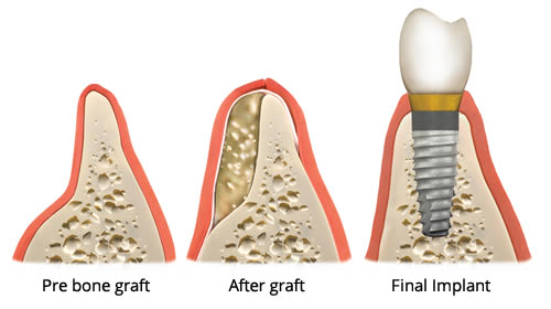 bone-graft.jpeg