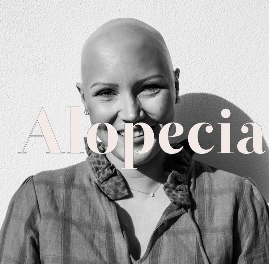 image-alopecia-01.png