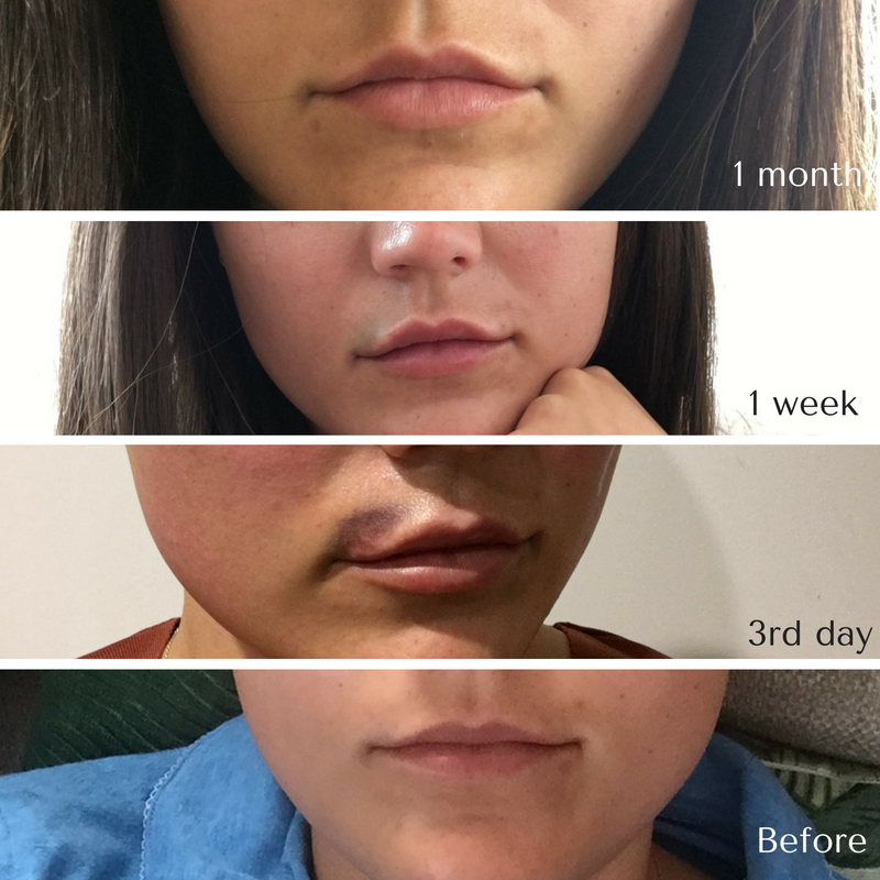 The Perfect Pout — Anna Reeve