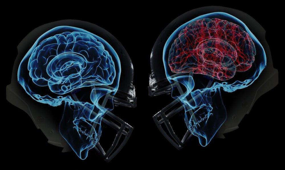 concussion1-e1454964727674.jpg