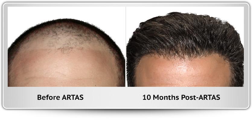 Los Angeles Hair Restoration