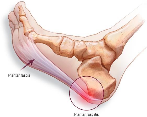 https://www.roddsanchez.com.au/2017/03/plantar-fasciitis-heel-pain/