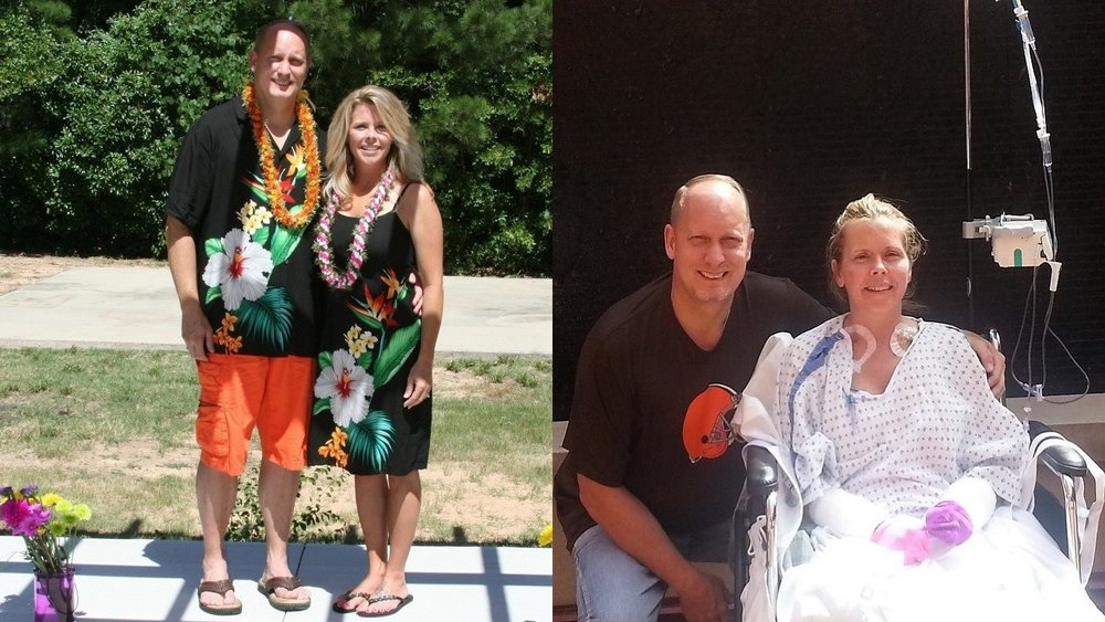 Jay and Sue before and after her sepsis case