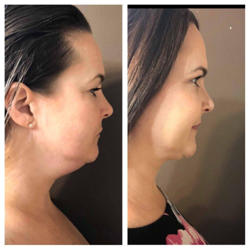 KYBELLA 2 treatments 3 months apart