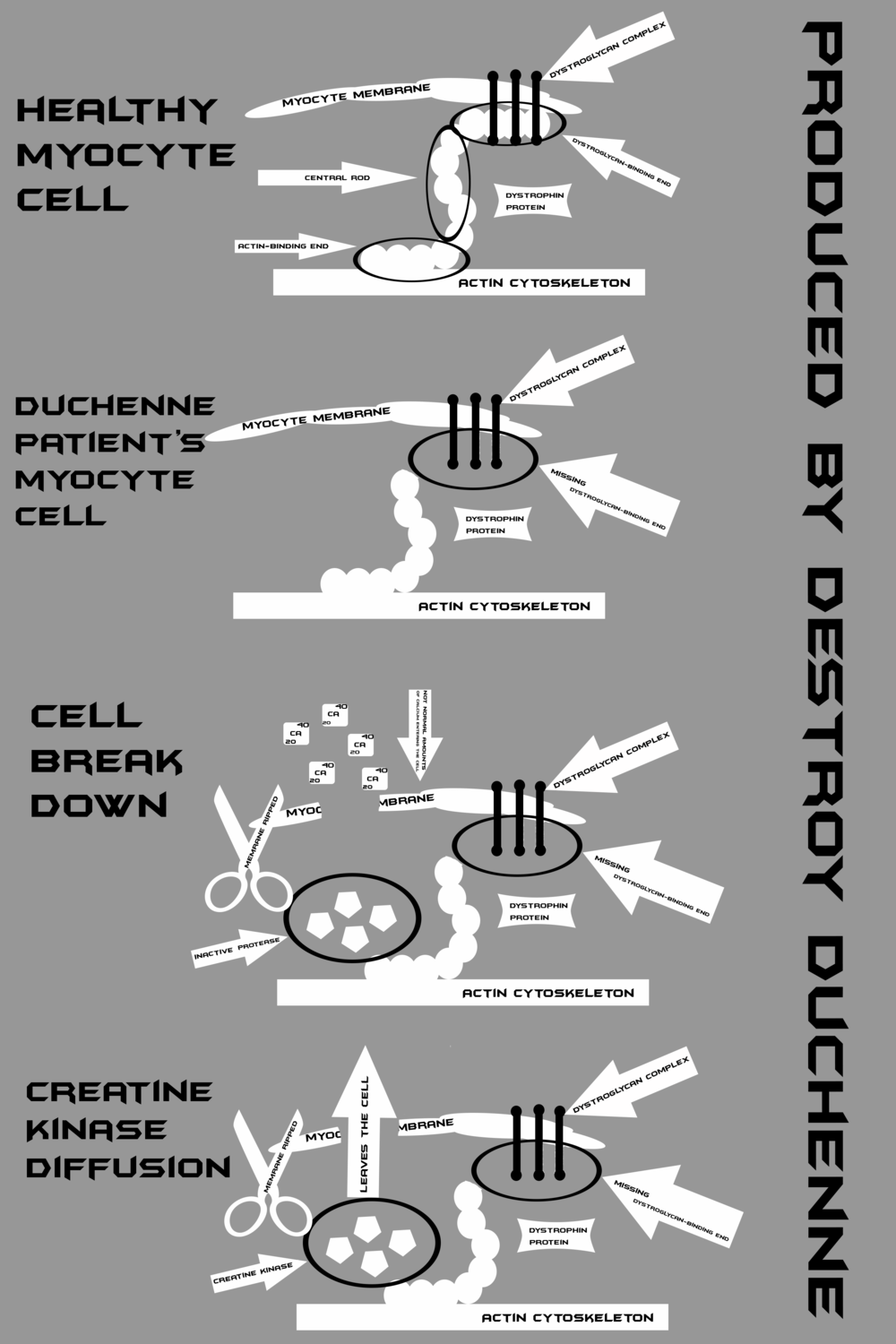 Duchenne explained in great detail.png