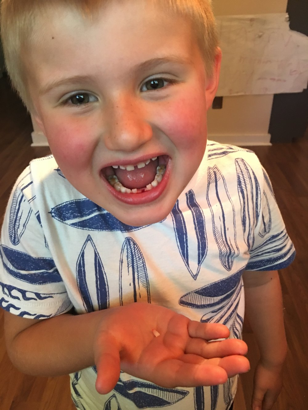 atlas- first tooth - tooth fairy