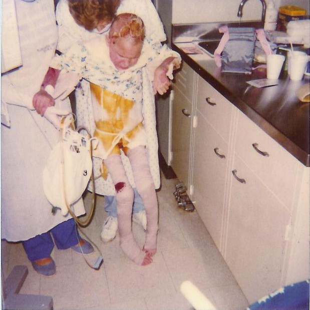 First time out of bed. June 8th 1988. My physical therapist Pam holding me up.