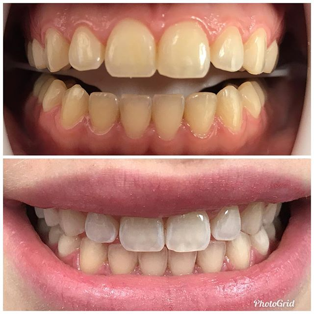 Heat and light activated teeth whitening.  #DesignerSmilesByJudy #cosmeticdentistry #dentist #teeth #teethwhitening #smiles #cosmeticdentist #smilemakeover