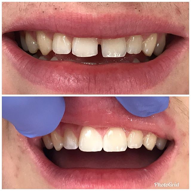 Showing a patient how to close spaces with bonding. We can show you, too, in about five minutes!  #DesignerSmilesByJudy #cosmeticdentistry #cosmeticdentist #frontteeth #whiteteeth #spaces #gaps #smiles #bonding