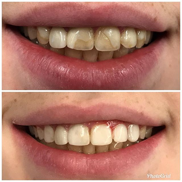 Smile makeover.  #DesignerSmilesByJudy #cosmeticdentistry #dentist #bonding #smiles #frontteeth #whiteteeth #teeth #cosmeticdentist