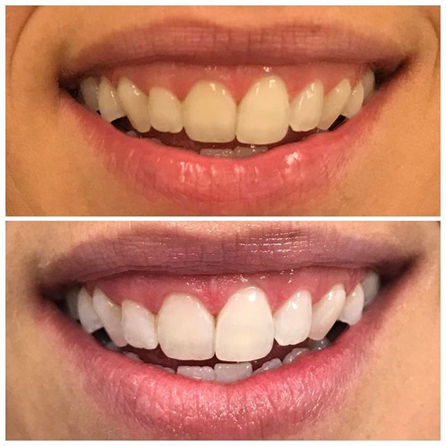 I was asked what that extra tooth was in the previous post. It's a shade matching guide to see how many shades the teeth were lightened. Here's the same gorgeous results without the shade match.  #DesignerSmilesByJudy #cosmeticdentist #dentist #smiles #whiteteeth #teethwhitening #happy #frontteeth