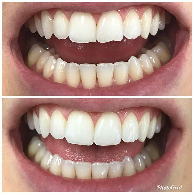 Another 5 minute smile makeover. How awesome is that?  #DesignerSmilesByJudy #cosmeticdentist #cosmeticdentistry #dentist #frontteeth #bonding #smiles #whiteteeth #veneers