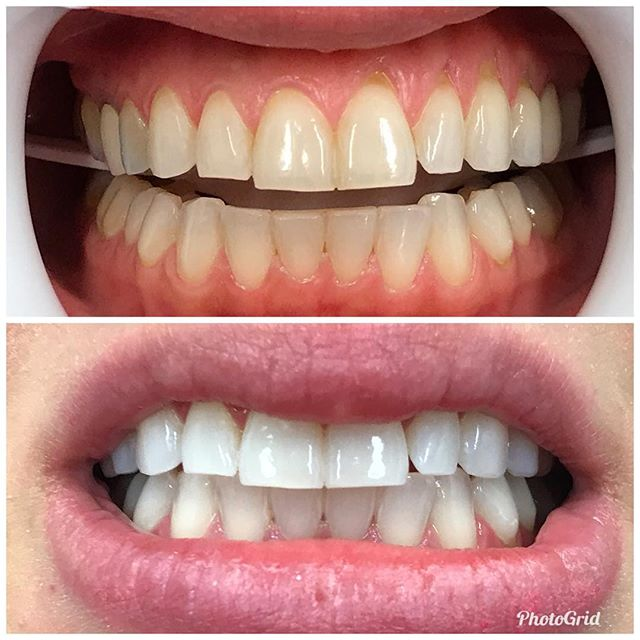 Incredible results with our new in-office whitening system.  #DesignerSmilesByJudy #teethwhitening #cosmeticdentistry #cosmeticdentist #whitening #whiteteeth #smiles
