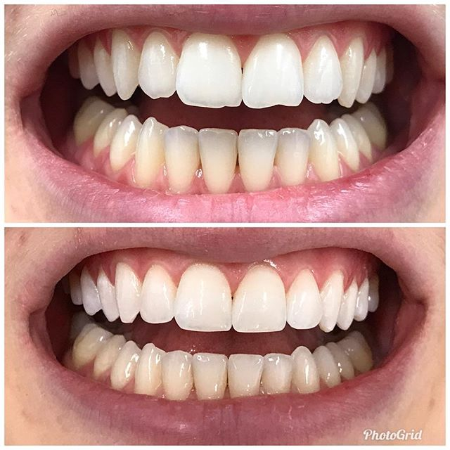 Bonding to even out all four front teeth. Color match=perfection.  #DesignerSmilesByJudy #cosmeticdentistry #dentist #whiteteeth #frontteeth #bonding #smiles #smilemakeover