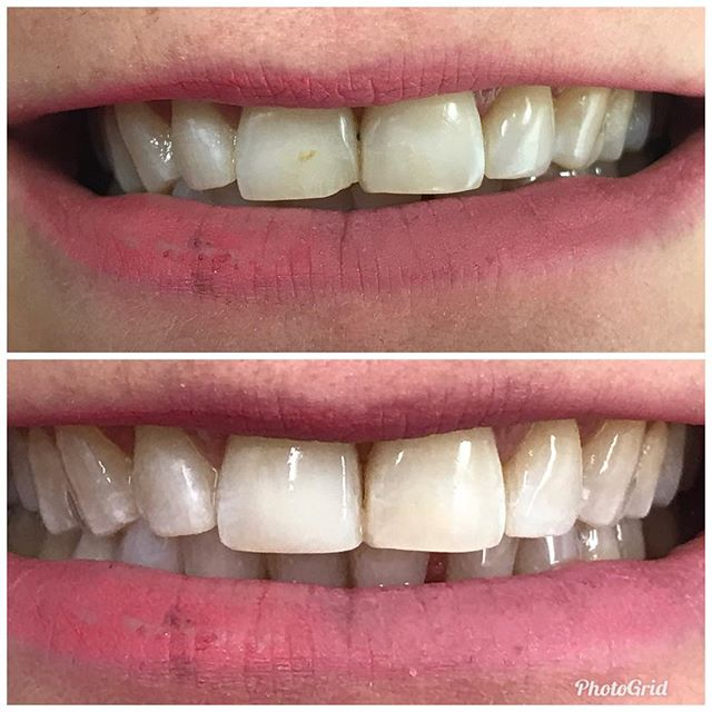 Front teeth....our specialty.  #DesignerSmilesByJudy #cosmeticdentistry #dentist #teeth #smiles #frontteeth #bonding #whiteteeth