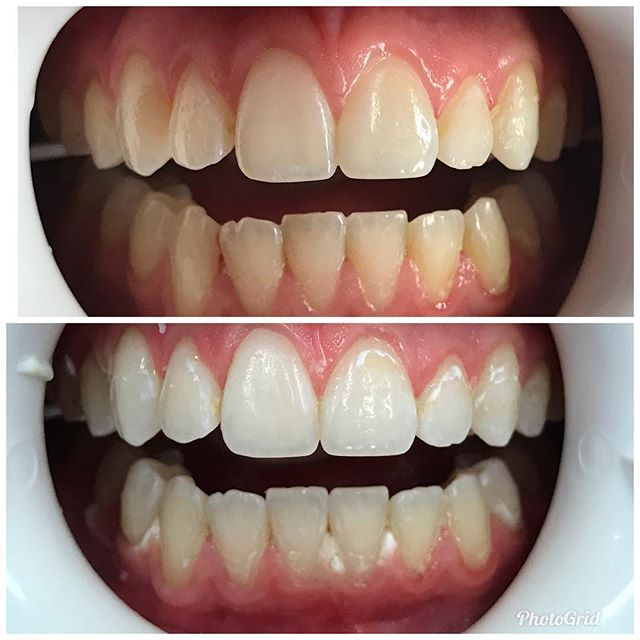 White teeth are the perfect accessory.  #DesignerSmilesByJudy #cosmeticdentistry #dentist #teeth #smiles #frontteeth #whiteteeth #whitening