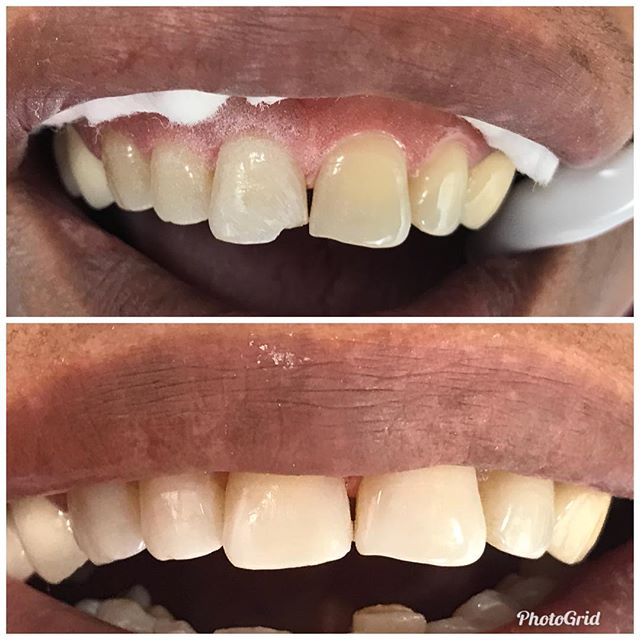 Front tooth bonding. Perfect shade match. Happy Patient  #DesignerSmilesByJudy #cosmeticdentistry #dentist #frontteeth #bonding #smiles #teeth