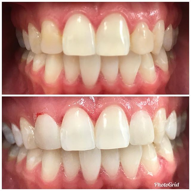 Emergency bonding for this beautiful bride. Picture ready! #DesignerSmilesByJudy #cosmeticdentistry #dentist #whiteteeth #bonding #smiles #cosmeticdentist