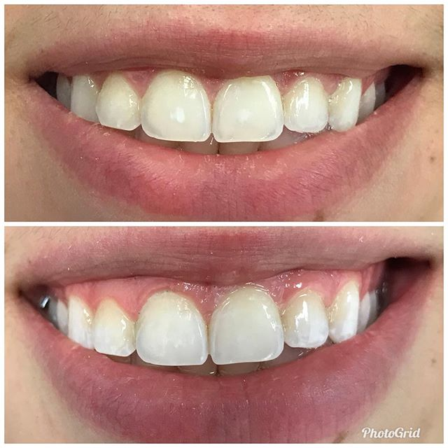 Removing unsightly white spots....like magic  #DesignerSmilesByJudy #cosmeticdentistry #dentist #cosmeticdentist #smiles #whitening #frontteeth #teeth