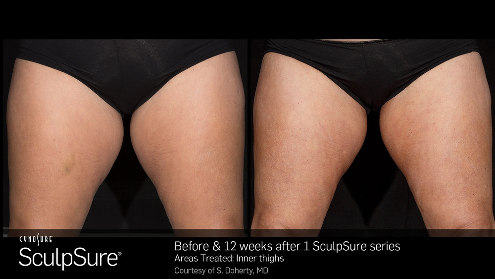 SculpSure Inner Thighs