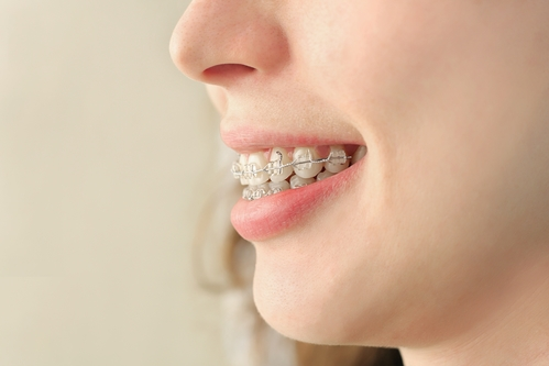 braces-maple-grove.jpg