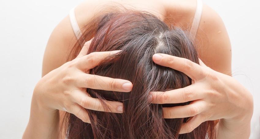Women-itching-scalp.jpg