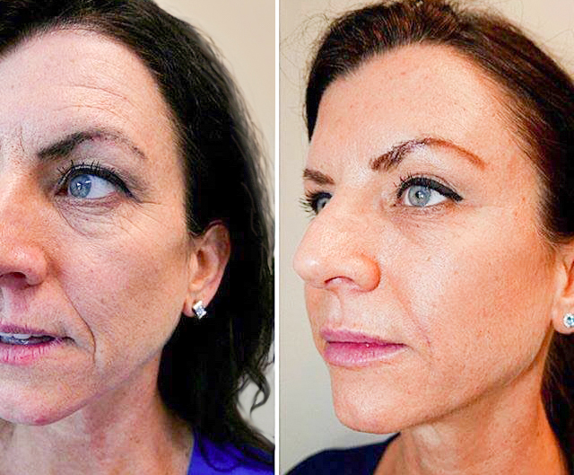Botox & CHEEK AND LIP Fillers