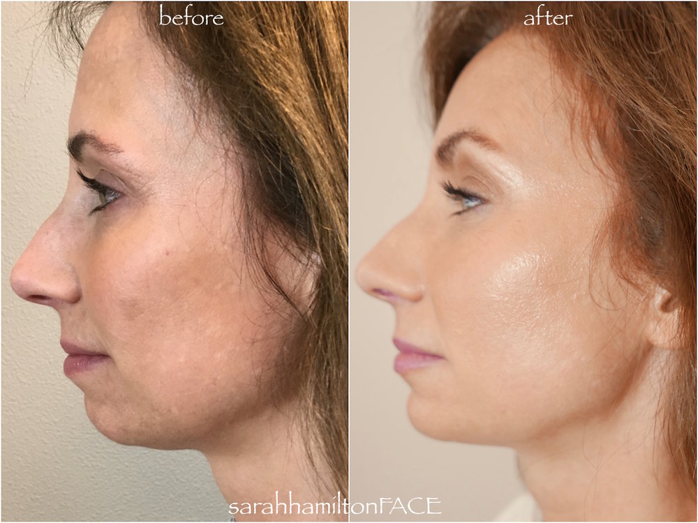 KYBELLA, BOTOX, FILLERS IN CHIN AND CHEEKS, BBL LASER, SKIN CARE
