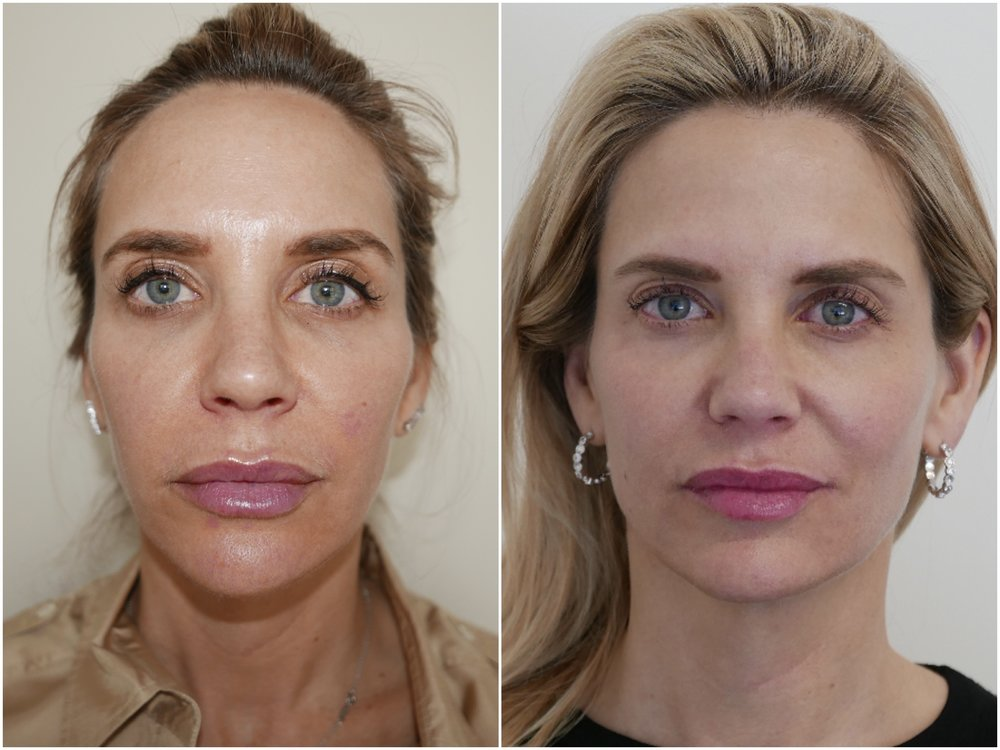2 Sculptra treatments in Temple area