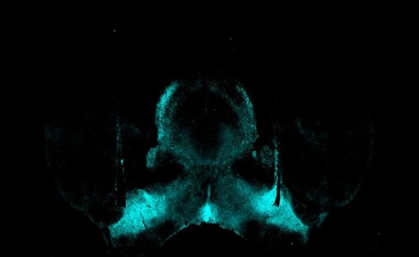 Substance P turquoise.jpg