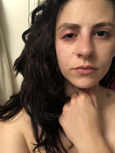 swollen-eyes-beofre.jpg